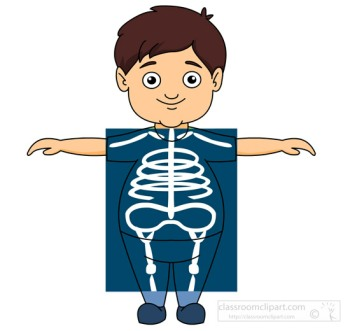 boy taking an x ray what is multiple sclerosis